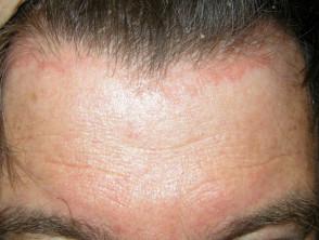 Psoriasis facial